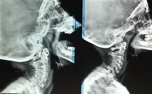 ENT Surgeon's blog: X-Ray Adenoid-which view is better ...