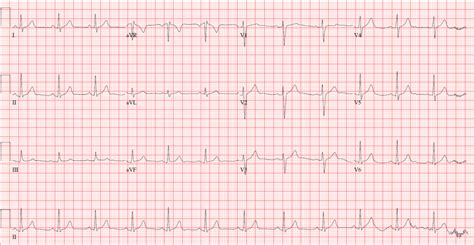 The Normal ECG – The Student Physiologist