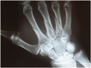 Hand Fracture | Singapore Orthopedic & Sports Specialist