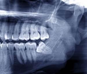Symptome Dent De Sagesse : sant bucco dentaire et pr vention centre dentaire rive sud ~ Maxctalentgroup.com Avis de Voitures