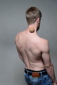 Muscle  U00e9l U00e9vateur De La Scapula   Douleurs Et Trigger Points