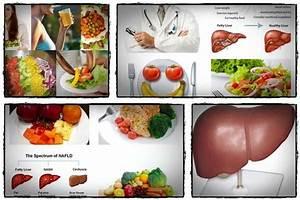 Fatty Liver Diet Pdf Review