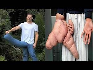 People With The Longest Body Parts In The World - YouPak.com