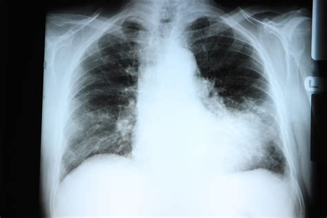 pneumonia symptoms severe signs disease infected person medicaldaily type mild re patients