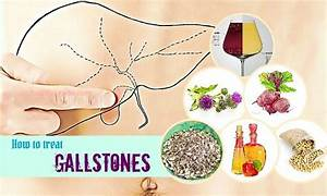 44 Tips How To Treat Gallstones Pain When Pregnant