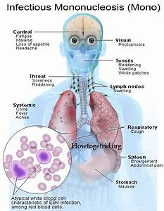 How To Get Rid Of Mononucleosis Epstein Barr Virus With