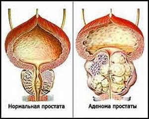 Народные средства и методы лечения простатита и аденомы
