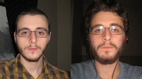 Minoxidil beard reddit shave - BeardStylesHQ