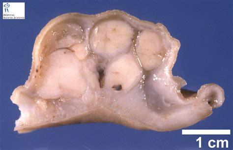 gastrointestinal stromal tumor humpathcom human pathology