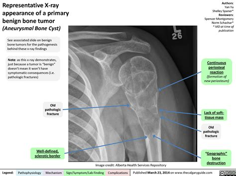 bone tumor benign ray appearance primary representative calgary guide