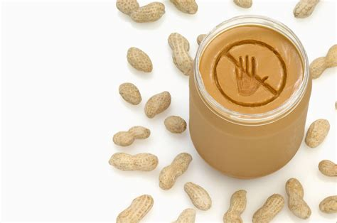 Peanut Allergy Diet Guide What You Need To Know
