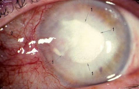 Herpes In The Eye Images Pictures Of Herpes In The Eye