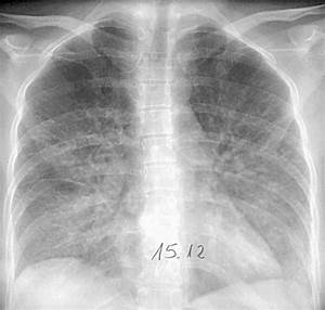An example of viral pneumonia