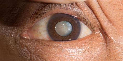 comparison   eye refinement methods highlights