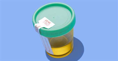 glucose urine test purpose procedure results
