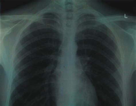 chest ray congestion fibrosis cystic rays medical imaging technique yarbro malpractice causes respiratory