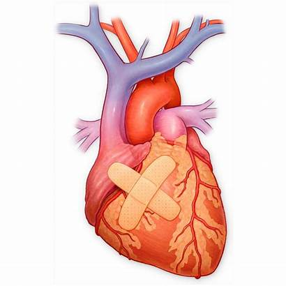 Heart Band Aid Myocardial Infarction Cardiovascular Attack