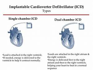 ICD Defibrillator Pacemaker - Bing images