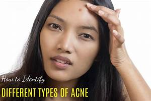 How To Identify Different Types Of Acne  Best Guide