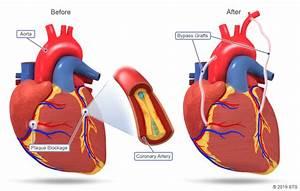 Coronary Artery Bypass Grafting  Cabg