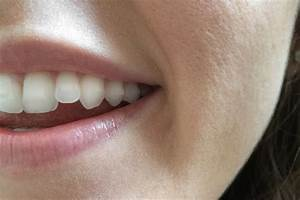 Pros and Cons of Invisalign | POPSUGAR Beauty