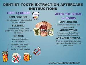 Tooth Extraction Aftercare Advice