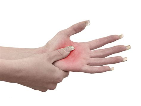 Remedios caseros para la artritis y artrosis