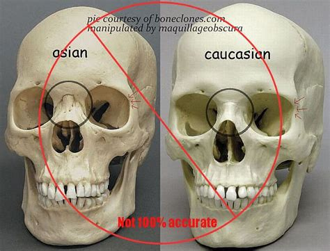 Are Human Skulls Of Different 'races' Much Different?