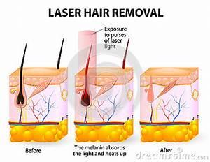 Laser Hair Removal  Vector Diagram Stock Photo