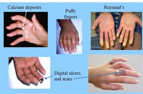 Alternative Herbal Treatment of Scleroderma - Herbs