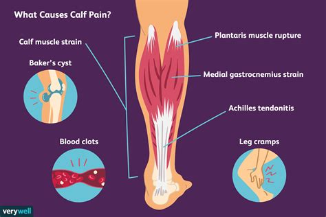 Before getting into an extended discussion of sore calves, it helps to know the basic anatomy of your lower leg. Calf Pain: Causes, Treatment, and When to See a Doctor