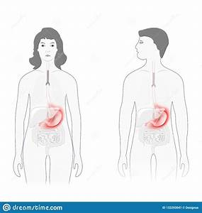 Stomach Pain  Male And Female Silhouette With Highlighted