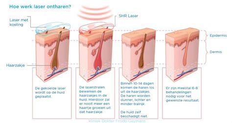 Zelf laser ontharen