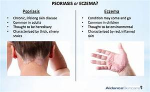 Psoriasis Vs Eczema The Difference | Dorothee Padraig ...
