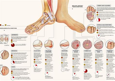 Foot Blister Diagram by Identifying Common Foot Conditions Infographic