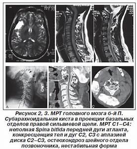 Памятка по профилактике артериальной гипертонии
