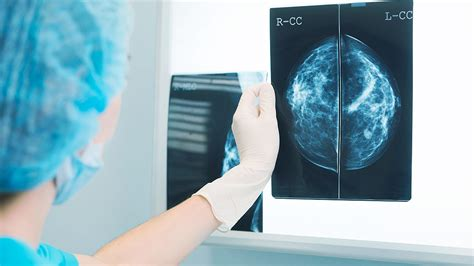 What Kind of Breast Cancer Screening to Get? - Consumer