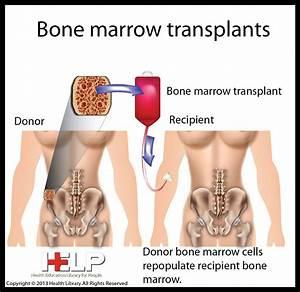 Before Dr. E. Donnall Thomas pioneered the bone marrow ...