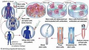 Bone marrow transplant   medicine   Britannica.com