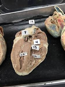 Sheeps Heart 1  Arch Of Aorta 2  Aortic Semilunar Valve 3