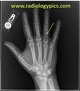 "Search Results for ""Bones In The Hand"" – Calendar 2015"