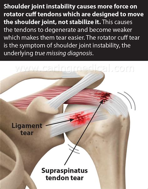 Rotator Cuff Tendinopathy Comparing Injection Treatments ...