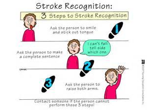 Stroke (CVA; Brain attack) Stroke