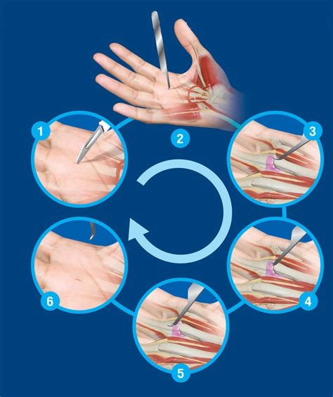 Trigger Finger Diagram by The Surgical Technique Of Percutaneous Release Trigger