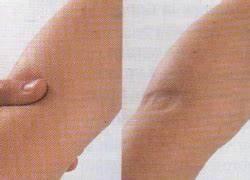 Сильные боли в коленных суставах чем полечить