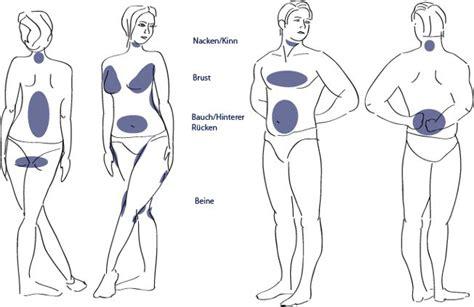Liposuction, Fettabsaugen und, fettabsaugung in Zürich