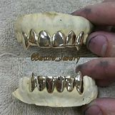 Gold Teeth Grillz | 2560 x 2560 jpeg 3554kB