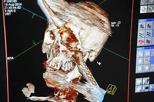 Metal Bar Goes Right Through Man39s Head As He Dismantles