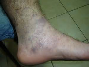 Red Spots On Lower Legs and Swelling