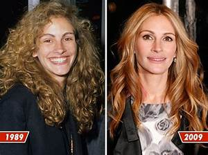 Celebrity Plastic Surgery Before  After 56 pics  Izismilecom
